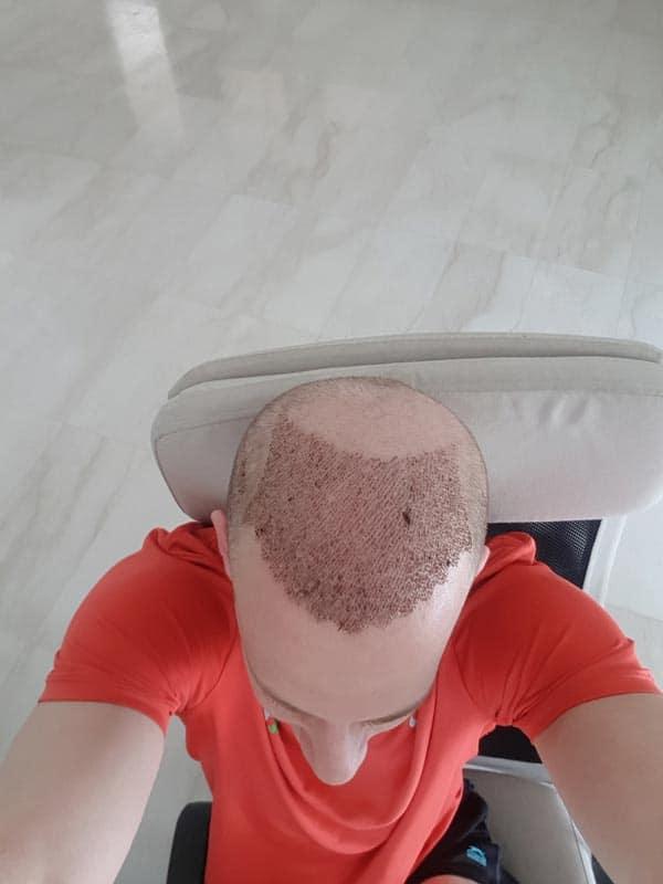 יום-6 לאחר השתלת שיער בטורקיה