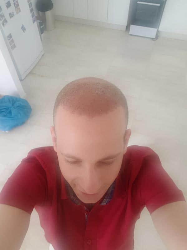 10-ימים-לאחר-השתלת-שיער-בטורקיה