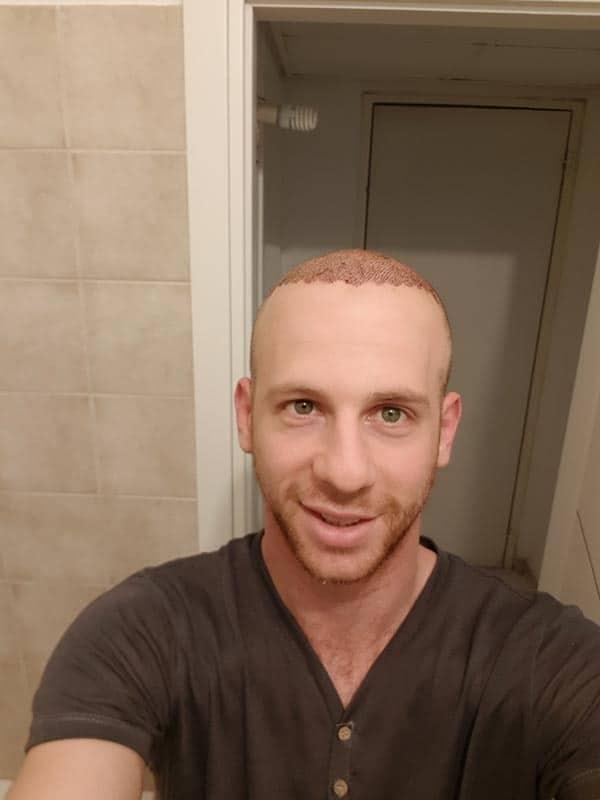 3-ימים-להשתלת-שיער