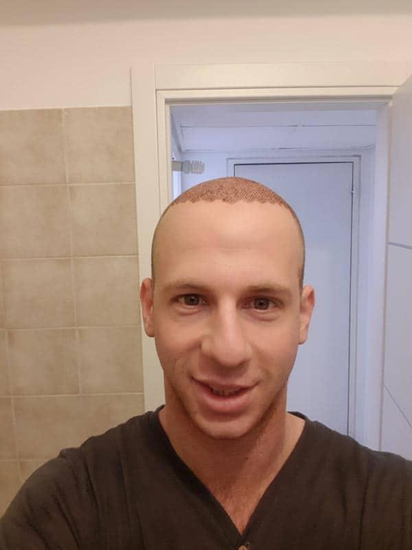 5-ימים-לאחר-השתלת-שיער חדש