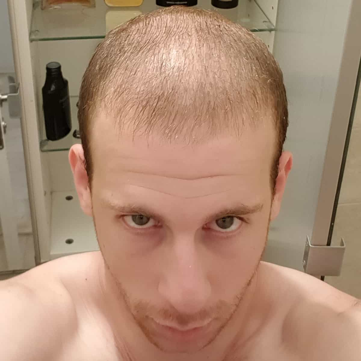 השתלת-שיער-105
