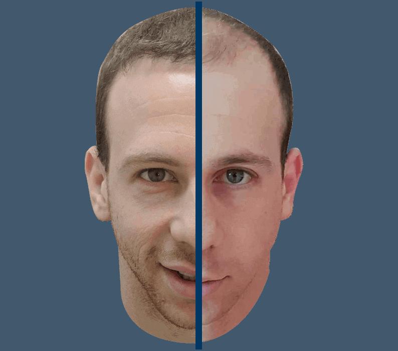 לפני ואחרי ניתוח השתלת שיער