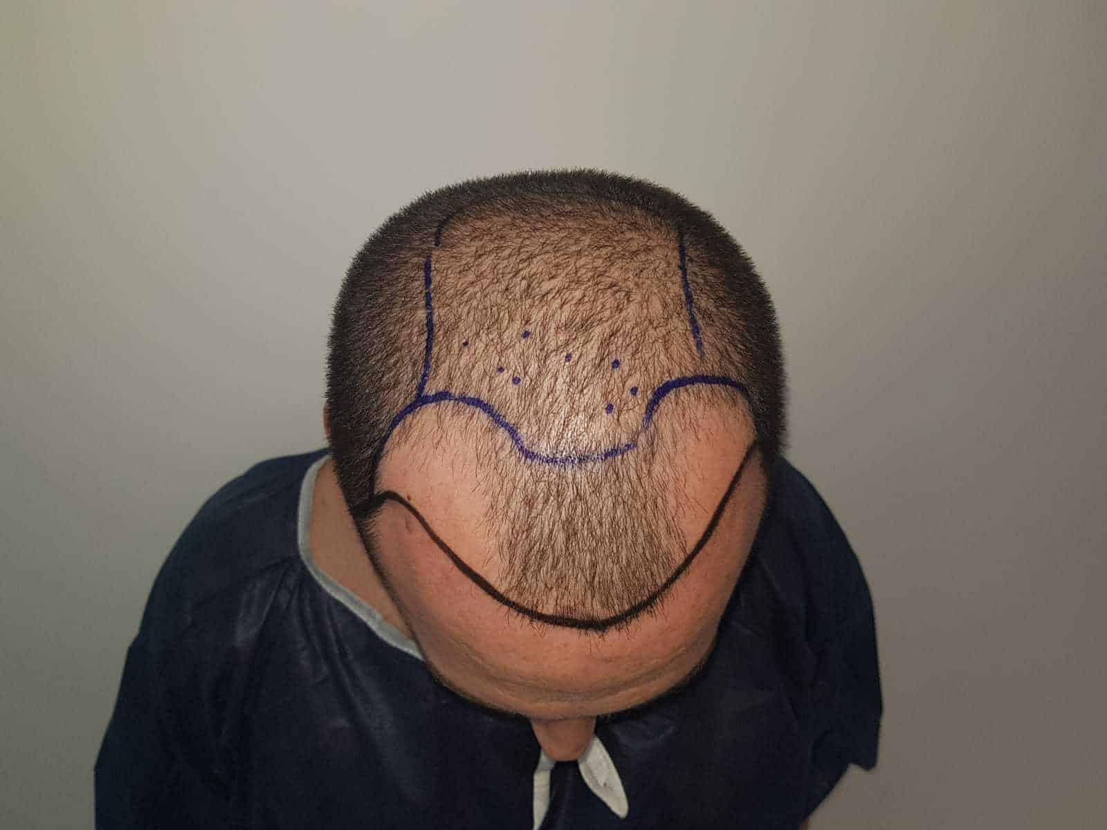 אבחון מקצועי לפני השתלת שיער