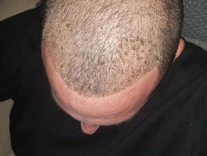 טיפולי זקיקי שיער
