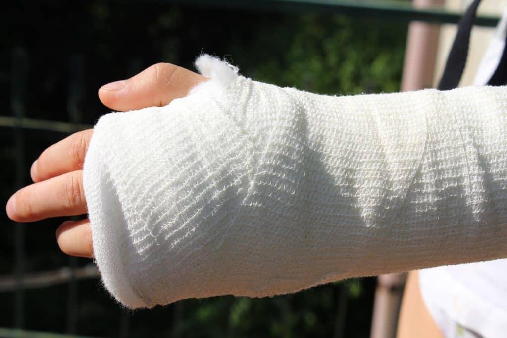 יד שבורה